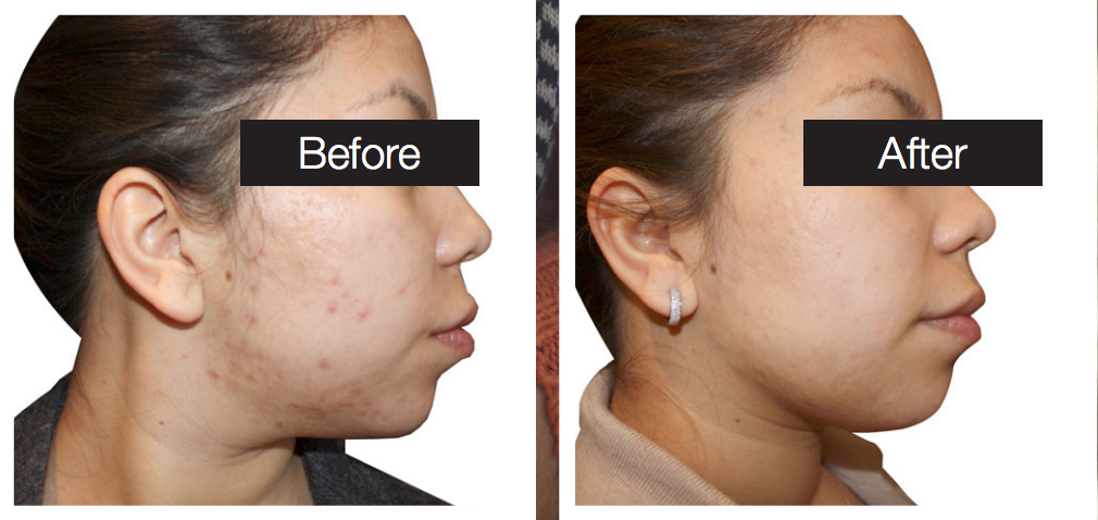 Acne Treatments Before and After Picture