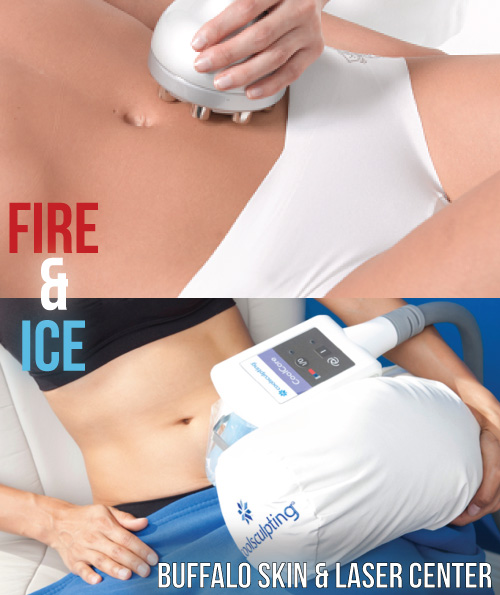 Coolsculpting Fire & Ice Fat Removal %Coolsculpting Fire and